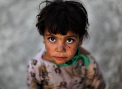 Rukhia Khan, an Afghan refugee girl poses for a photo in a refugee camp in Kabul, Afghanistan.