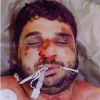 This pictures shows the severe beating suffered by Iraqi civilian Baha Mousa who died in UK custody. The inquiry heard he had 93 separate external injuries.