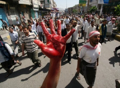 A protestor displays his hand painted in red to symbolize bloodshed during a demonstration demanding the resignation of Yemeni President Ali Abdullah Saleh in Taiz, Yemen, on Saturday