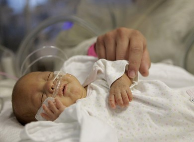 14-week-old Melinda Star Guido lies in an incubator at the Los Angeles County-USC Medical Center in Los Angeles