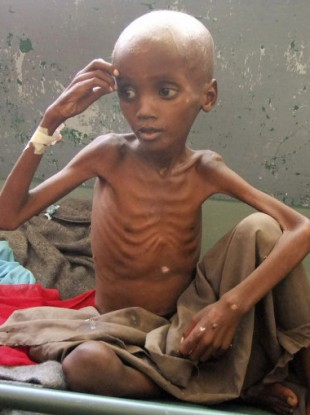 A severely malnourished child in southern Somalia.