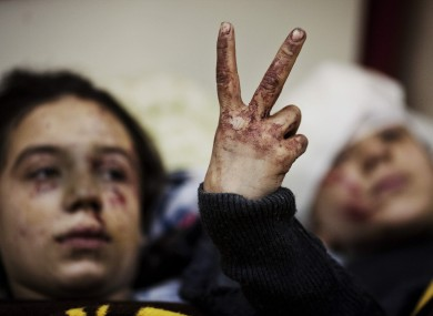 Hana, 12, flashes the victory sign next to her sister Eva, 13, as they recover from severe injuries after the Syrian Army shelled their house in Idlib. Their father and two siblings were killed during the attack.