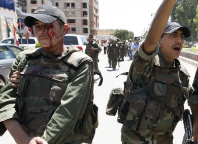 A bloodied soldier following the incident in Deraa today.