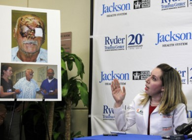 Plastic surgeon Dr Wrood Kassira gestures to images of Ronald Poppo during a press conference on his condition.