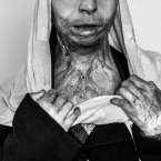 Zahra, 20, burned herself four years ago. Women are in a subordinate position in Afghan society, where conservative Islamic laws and tribal traditions dictate what they are allowed to do. Forced marriages, domestic violence, poverty, and lack of access to education are said to be some of the main reasons for self-immolation. (Image: Majid Saeedi)