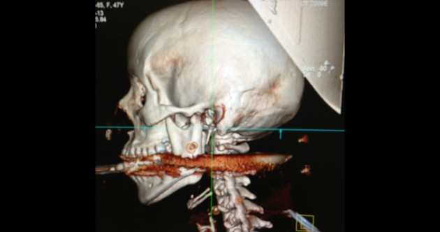 Woman shot in the mouth by harpoon – and survives